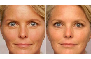 How anti-wrinkle creams work
