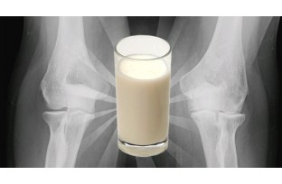 Keep osteoarthritis away with milk