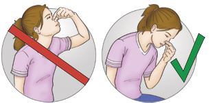 Tilting your head backwards can cause you to swallow blood, which leads to vomit.